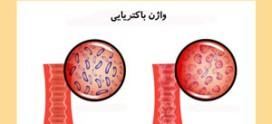 عفونت واژن