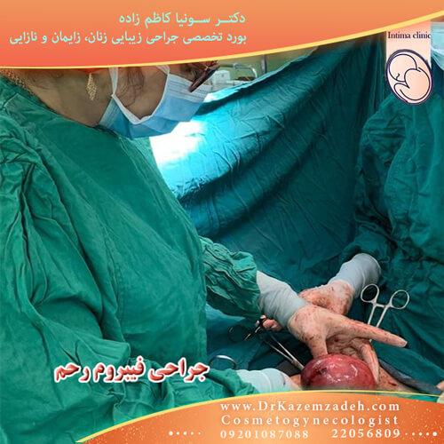 درمان فیبروم رحم